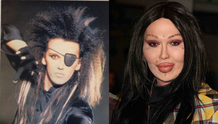 Pete-Burns-Plastic-Surgery-Before-and-After-Photos-Pictures-2.jpg